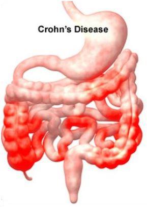 laboratorio-analisi-caltanissetta-agrigento-test-esami-morbo-crohn-intestino-infiammazione-1