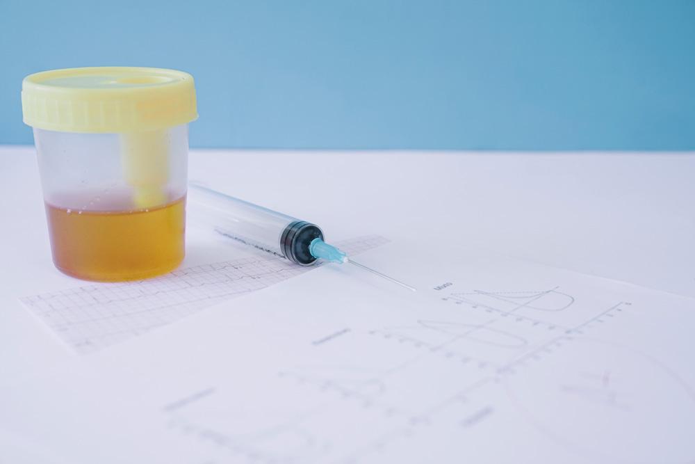 laboratorio-analisi-caltanissetta-agrigento-test-esami-urine-diagnosi-3